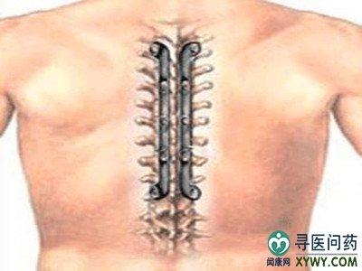 脊髓损伤手术后症状