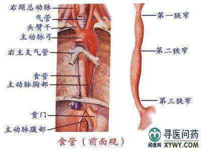 进展期食道癌的症状与治疗